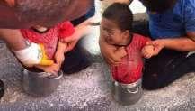 2 yaşındaki minik düdüklü tencereye sıkıştı!