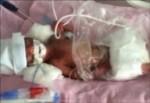 670 gram doğan bebek helikopterle Ankara'ya sevk edildi