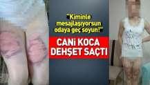 İzmir'de eşine oklava ve kemerle işkence yaptı! Kan donduran ifadeler!.