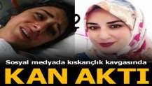 Sosyal medyada kıskançlık kavgasında eşini 9 yerinden bıçakladı